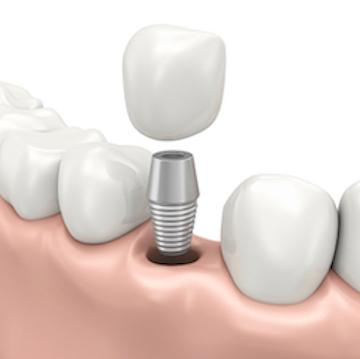 dental implant diagram | broomfield co dentist
