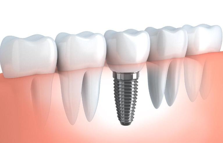 Dental implants | Dentist Broomfield CO