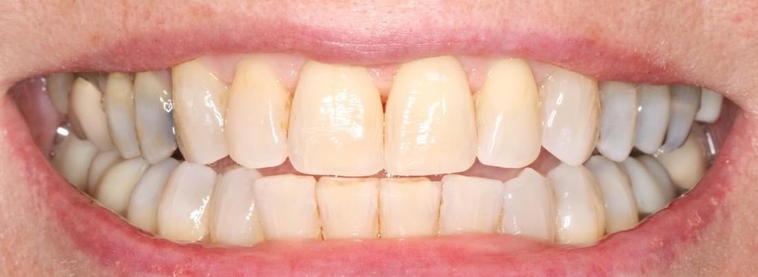 veneers after image | broomfield co dentist