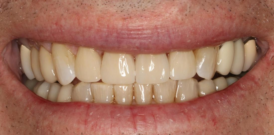 after porcelain veneers | broomfield co dentist